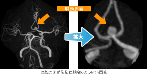瘤 破裂 動脈 脳